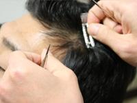 特殊な器具で増毛作業