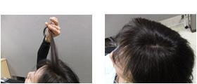 女性の増毛例